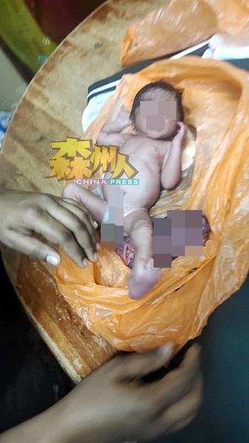 惨遭亲人狠心丢弃的女婴,被装入购物的塑料袋中,目击者打开袋子时,惊见其脐带和胎盘全在。